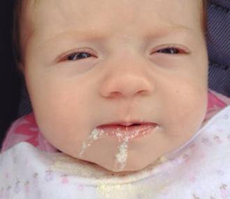 Neden bebekler beslendikten sonra regürjitasyona giriyorlar 4
